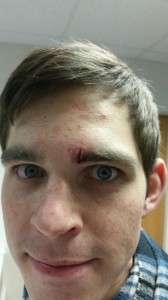Four stitches and one drawn on eyebrow later, he is good as new!